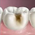 Tratamiento láser aumenta resistencia del esmalte dental