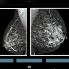 Se necesitan protocolos de control de calidad en los programas de detección de cáncer de mama.