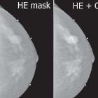 Técnica desarrollada en el IF promete mejorar mamografías actuales